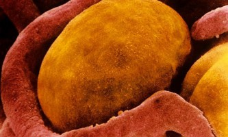 Чорниця звичайна в боротьбі з ожирінням