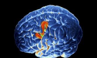 Де мозок зберігає мову