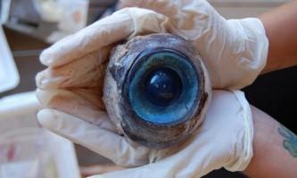 Гігантська очне яблуко знайдено на пляжі штату флорида