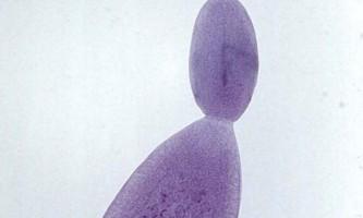 Ехінокок: як розпізнати людського паразита?
