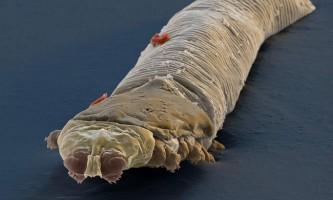 Кліщі demodex: життя паразитичних членистоногих