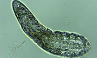 Крихітні восьминогие кліщі постійно живуть на людському обличчі, запевняють вчені