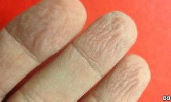Чому шкіра на пальцях морщиться у воді