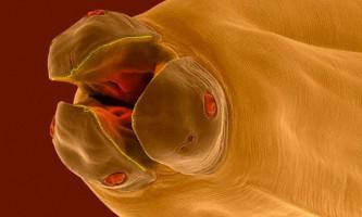 Собачі паразити являють безпосередню загрозу здоров`ю людини