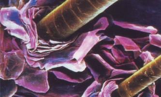 Вчені довели, що шампуні від лупи знищують рослини
