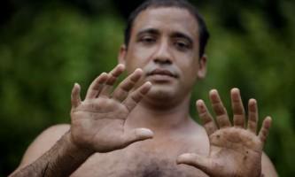 Унікальна людина з 24-я пальцями