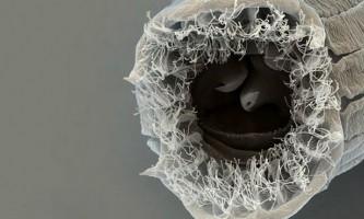 У плодах інжиру знайдений черв`як з п`ятьма обличьями